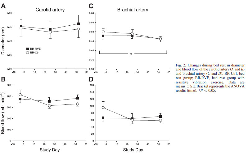 Changes during bed rest in diameter and blood flow of the carotid artery (A and B) and brachial artery (C and D).