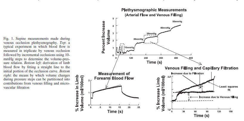 Supine measurements made during venous occlusion plethysmography. Top: a typical experiment in which blood flow is measured in triplicate by venous occlusion followed by incremental occlusions using 10- mmHg steps to determine the volume-pressure relation. Bottom left: derivation of limb blood flow by fitting a straight line to the initial portion of the occlusion curve. Bottom right: the means by which volume changes during pressure steps can be partitioned into contributions from venous filling and microvascular filtration